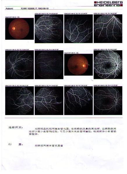 霜枝样视网膜荧光炎典型病例教程鱼钩v荧光视频小眼底血管图片