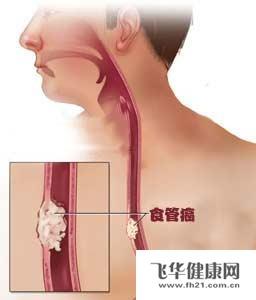 吸烟喝酒饮热茶者患食管癌的风险会加大