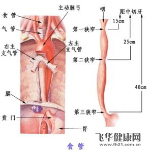 巴特食管是指食管本来是鳞状上皮,胃贲门为腺体,上移化生,导致