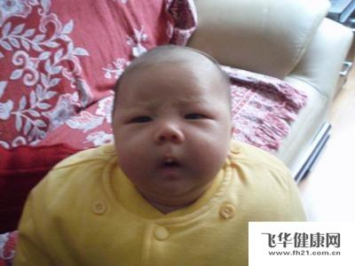 新生儿头部有许多小白点是什么原因