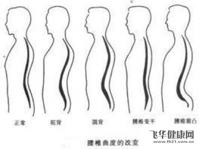 人体生理弯曲_腰椎生理弯曲