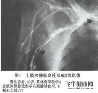 肠系膜上静脉指的是肠里面还是肠外面