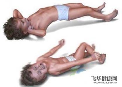 宝宝会先天性发育不良吗