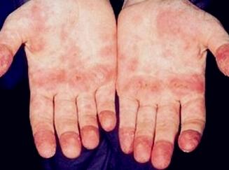 红斑狼疮症状表现有哪些?