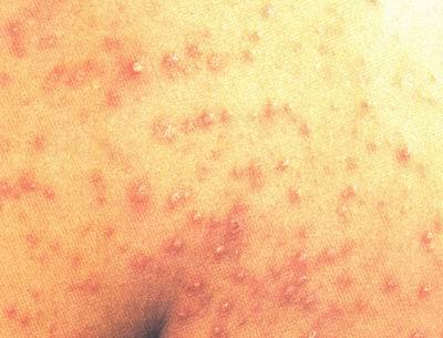 盘形红斑狼疮发病原因