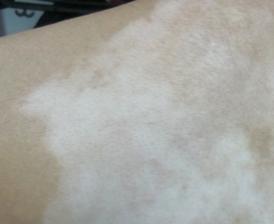 白斑病是白癜风吗?
