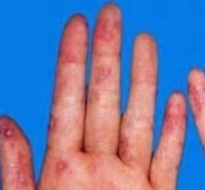 红斑狼疮症状痒吗