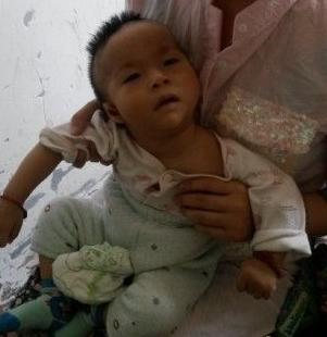 神经科 脑瘫 治疗    脑瘫儿早期训练康复效果较好,婴儿出生后6个月是