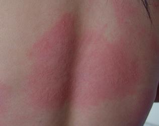 荨麻疹病初期的症状有哪些