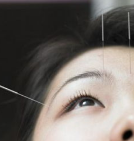 石家庄中医针灸科治疗面瘫的针灸方法