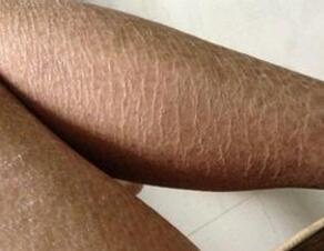 皮肤病_皮肤科 鱼鳞病 症状  临床上鱼鳞病是一种很常见的皮肤病,生活中也有