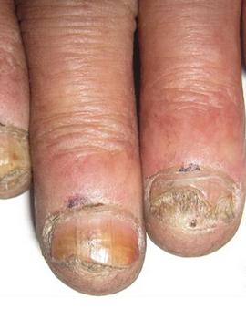 灰指甲治好的症状