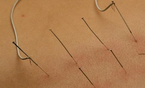 安徽养护面瘫后遗症有好办法沙宣迷迭香治疗发图片