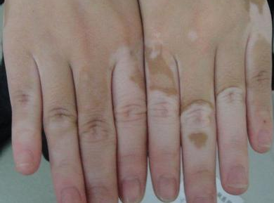 手足白癜风病因有哪些