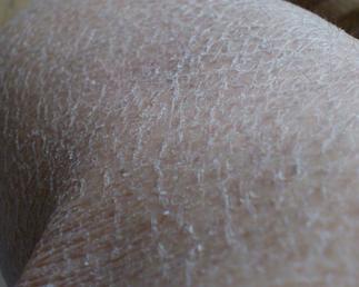 鱼鳞皮肤病_> 皮肤科 > 鱼鳞病 > 饮食  鱼鳞病: 鱼鳞病指的是相对不太常见的皮肤