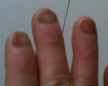 手指甲灰指甲初期症状