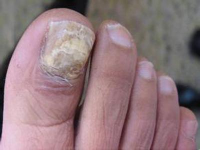 灰指甲的前期症状是什么样子的