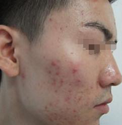 痤瘡的初發癥狀是什么
