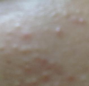 青春痘痤瘡形成的原因是什么
