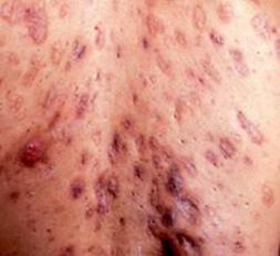 中度痤疮中药治疗方法有哪些