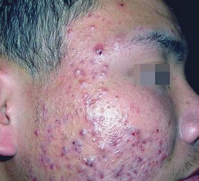 左右臉頰長痤瘡的主要原因