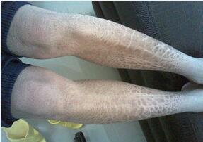 鱼鳞状皮肤_鱼鳞病和蛇皮肤有什么关系呢