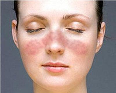 红斑狼疮早期症状有哪些
