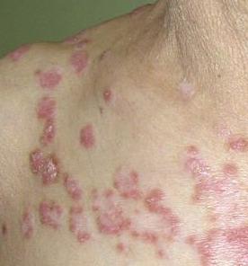 红斑狼疮怎么治疗有效
