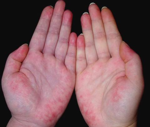 红斑狼疮的治疗方法