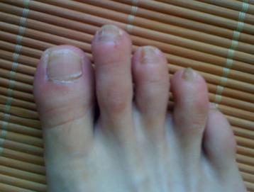 灰指甲病因有哪些