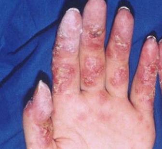 红斑狼疮要如何治疗