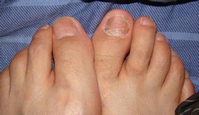 什么样症状是灰指甲