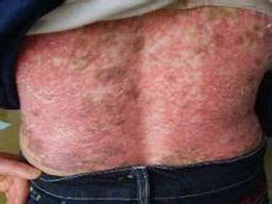 红斑狼疮复发症状表现