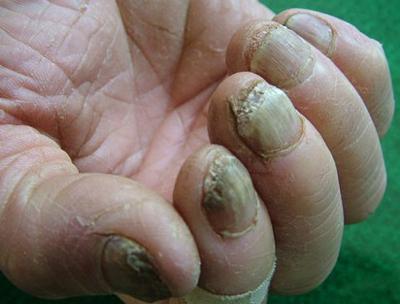 自己在家治疗灰指甲