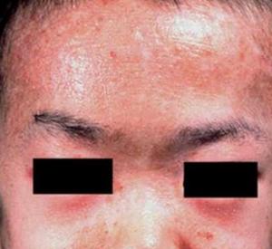 皮肌炎是皮肤病吗