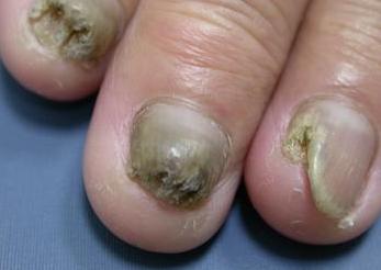 冰醋酸治疗灰指甲会痛吗