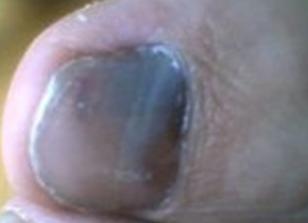 灰指甲形成的原因有哪些