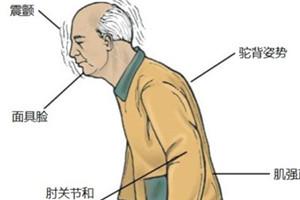 帕金森病运动症状有哪些