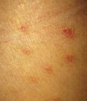 荨麻疹和症状有哪些