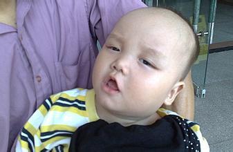婴幼儿脑瘫是遗传吗