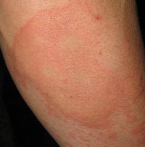 丘疹性荨麻疹的症状