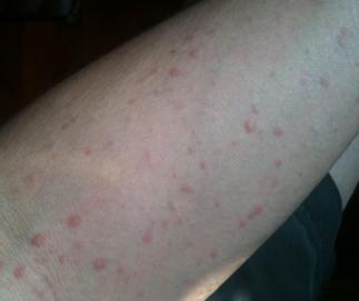 寒冷性荨麻疹病因