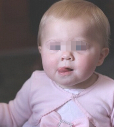 解读小儿外伤性脑瘫遗传吗