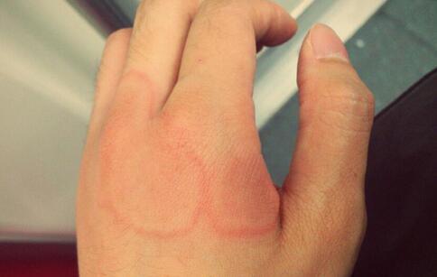 地肤子治疗荨麻疹 偏方治疗有一套