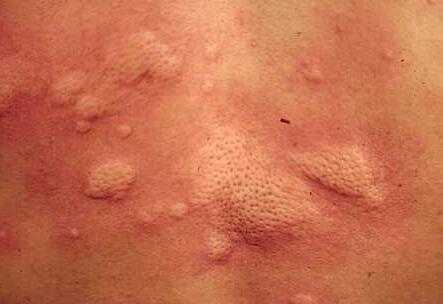 中药调整荨麻疹药方有哪些
