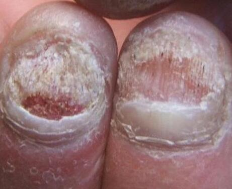 灰指甲的病因及治疗