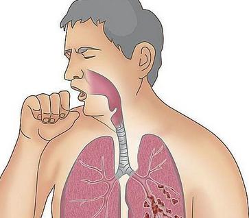 中度肺气肿怎么治疗