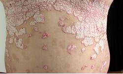 老年脓疱型银屑病的病因有哪些