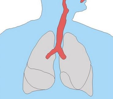 肺部支气管扩张是一种什么病