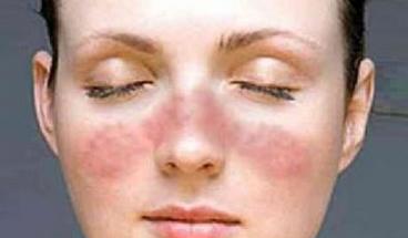 面部红斑狼疮传染人吗